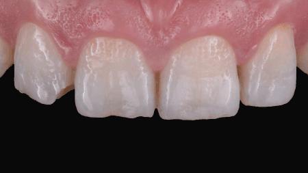 Affected maxillary teeth