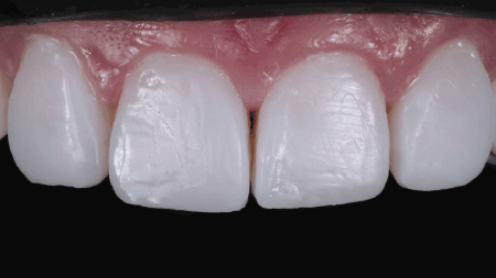 Appearance of teeth after application
