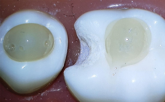 Two different flowables syringed onto dentoform teeth