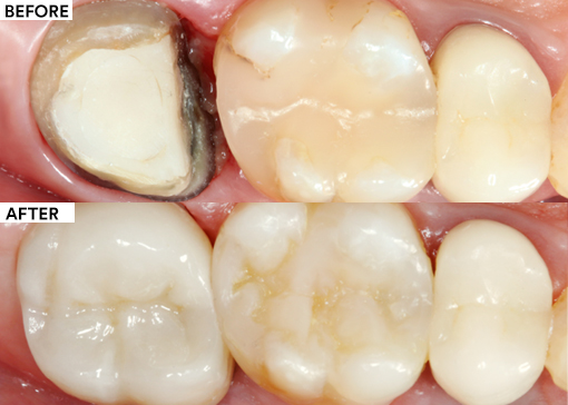 Replacement of a Single Unit Molar Crown Featured Image