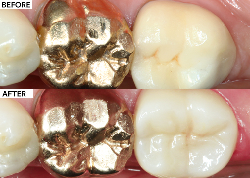 All-ceramic replacement featured image