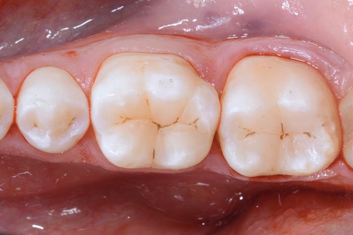 Essential lines: Direct posterior restorations simplified