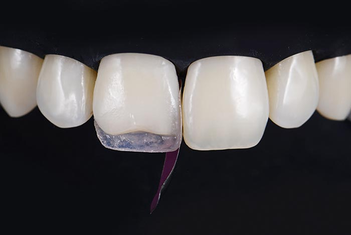 Vertical use of a posterior tooth matrix
