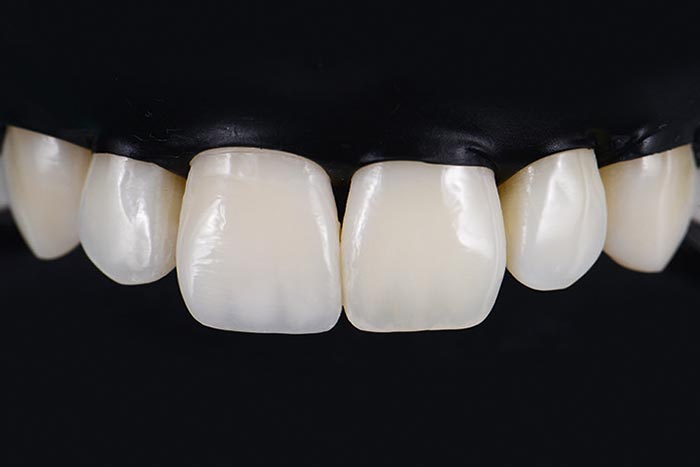 Restoration after the finishing and polishing procedure