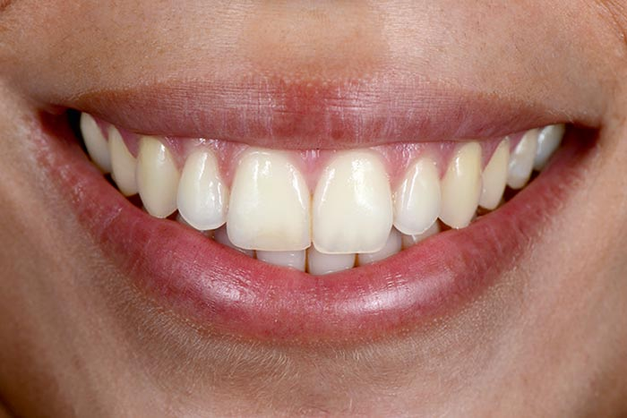 Beautiful teeth of the young female patient.
