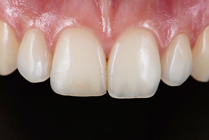 discoloured composite restoration on the upper right central incisor