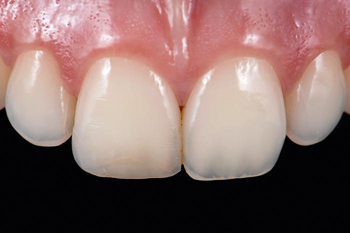 adjacent tooth shows different opacities