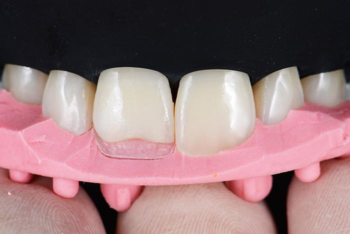 Placement of the first palatal layer