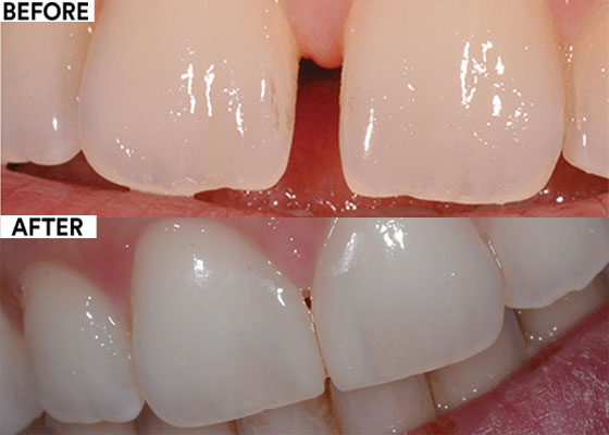 Midline diastema closure