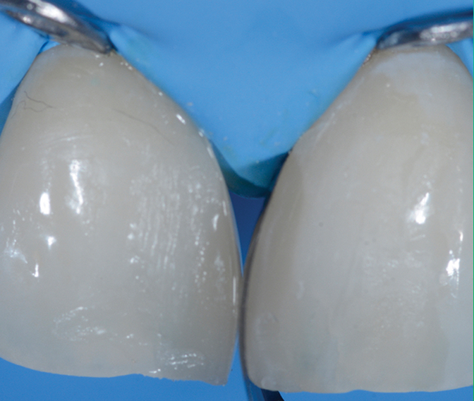 Composite was added from the palatal side