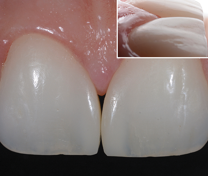 Composite blended well with natural surface of central incisors