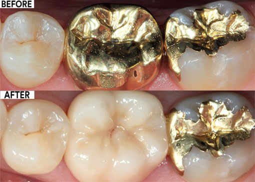 Lower molar crown replacement