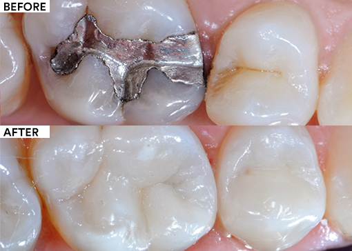 Amalgam replacement