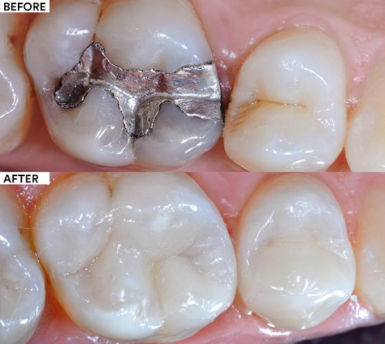 Amalgam replacement