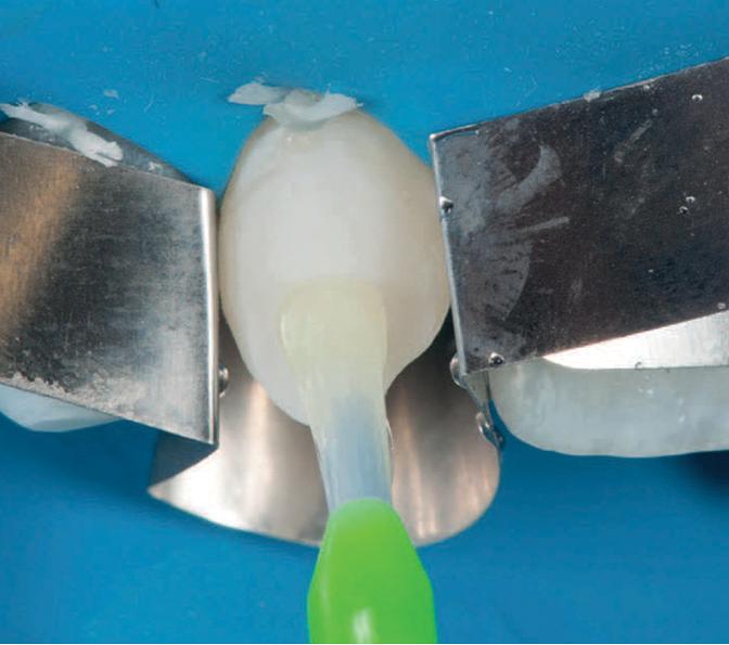 3M Scotchbond Universal Adhesive applied