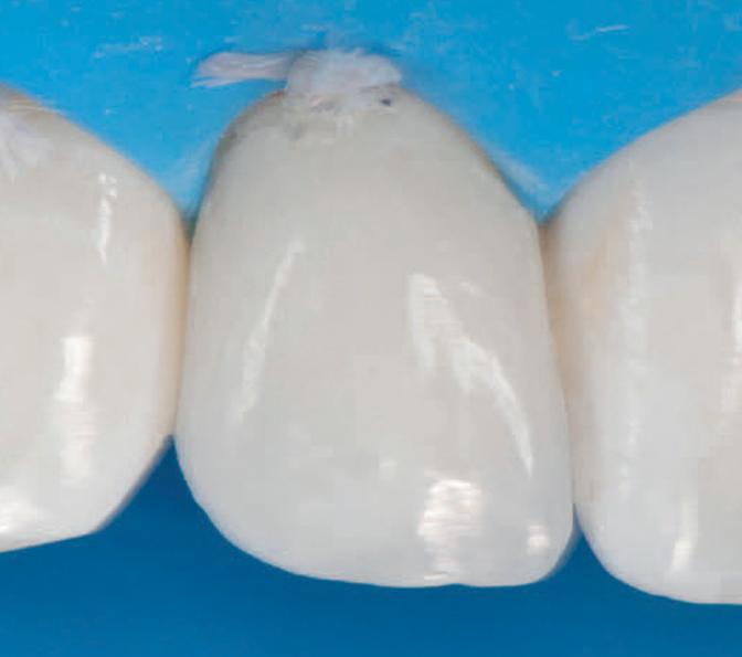 3M Sof-Lex Diamond Polishing System was used