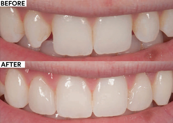 Aesthetic and conservative bonding for small laterals