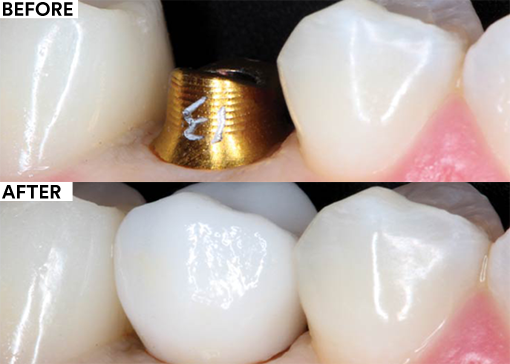 RMGI dental cement for implant restoration - before and after
