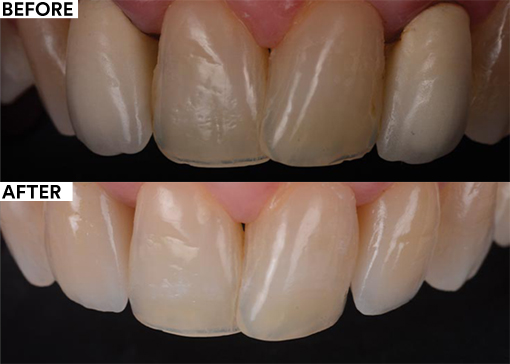 Patient-centered dentistry - before and after