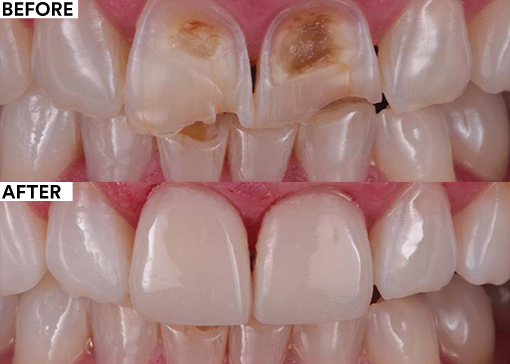 Solving esthetic issues in the anterior region with composite before and after