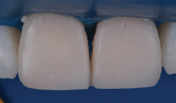 Restorations after polishing with 3M™ Sof-Lex™ Diamond Polishing System