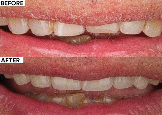 Replacement of Insufficient Restorations to Improve Esthetic Appearance - Before and After