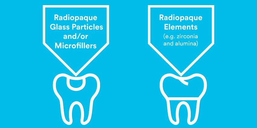 Radiopacity in modern dental restorative materials