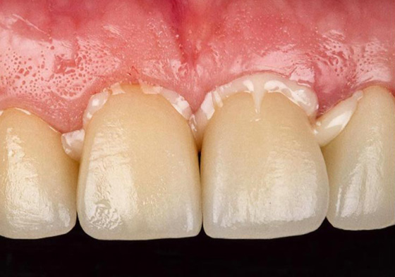 Cementation of final crowns