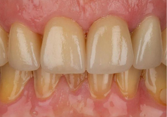 Results of zirconia restorations