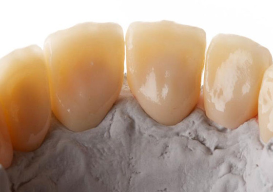 Lingual view of monolithic zirconia crowns fabricated on a stone model
