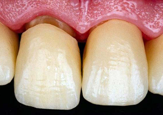 Try-in of crowns to confirm fit and esthetics before cementation