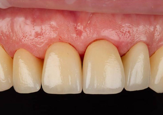 Try-in of final zirconia restorations