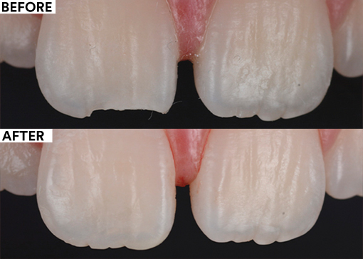 Fixing margin enamel chipping - before and after