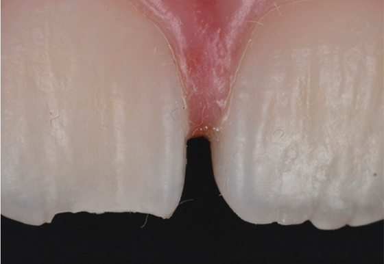 Fractured upper-right central incisor