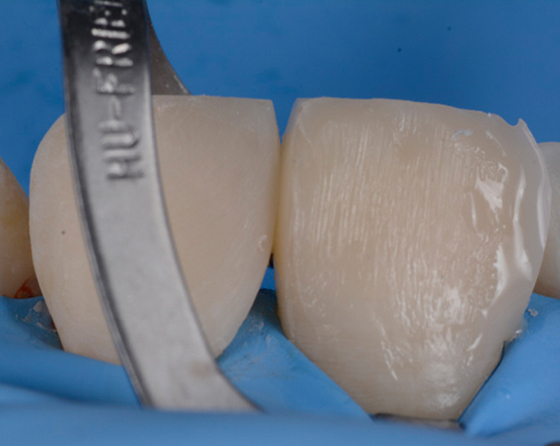 Distal and mesial contours are optimized