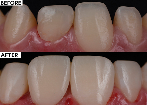 Stabilizing complex cases with single shade composites before and after