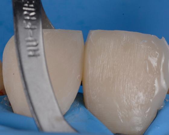 Restored left canine and premolar