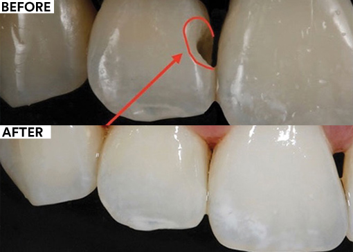 Bioclear Matrix before and after