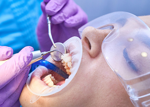 Dental procedure producing aerosols