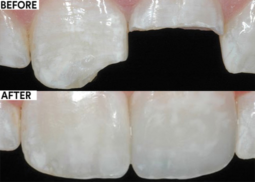 Esthetic restoration of maxillary central incisors before and after