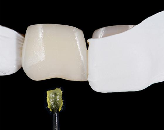 Application of adhesive