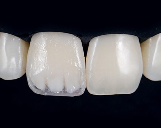 Dentin core is created and mamelons are added to mimic the appearance of the left central incisor