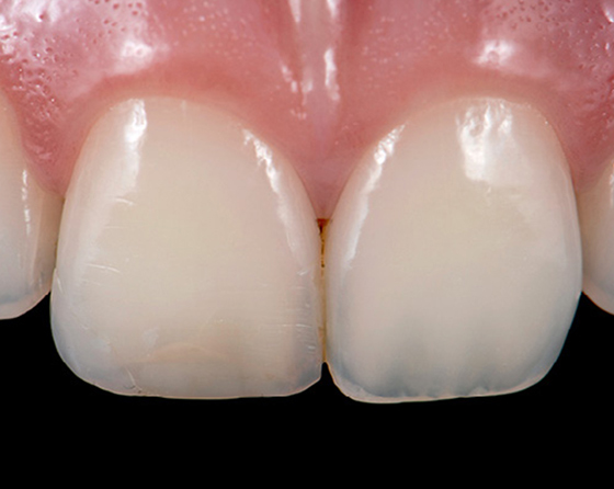 Small discoloration is seen along with uneven incisal edges