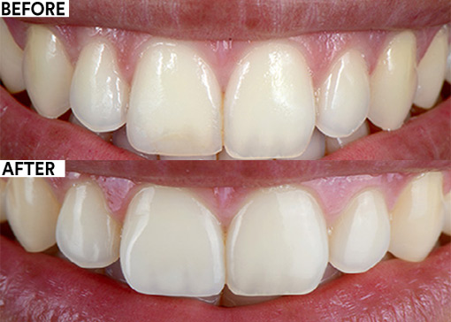 Dual-layer technique in the anterior region before and after