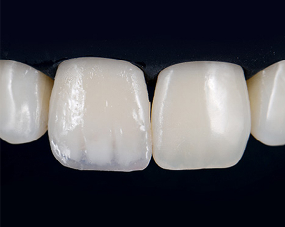 A layer of composite is the foundation for a uniform final enamel layer