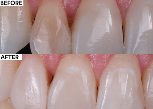 Non-invasive restorative treatment of a discolored lateral incisor before and after