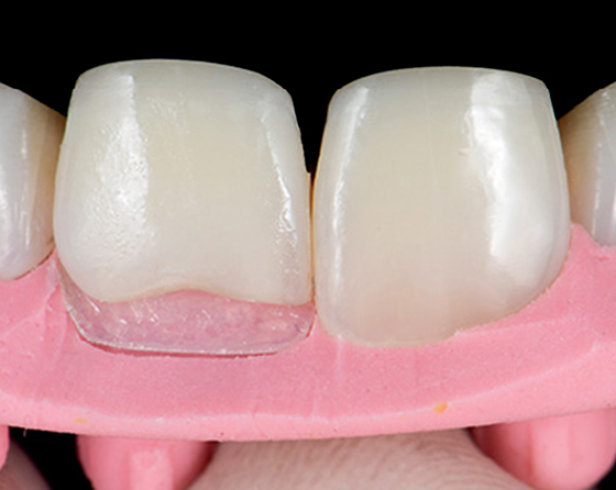 Placing a palatal composite shell