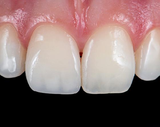 Beautiful restored upper-left central incisor (immediate post-op)