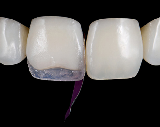 Vertical matrix placement aides in the creation of a mesial interproximal wall