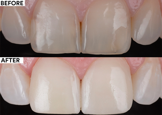 Reinforcing esthetics and structure by additive dentistry